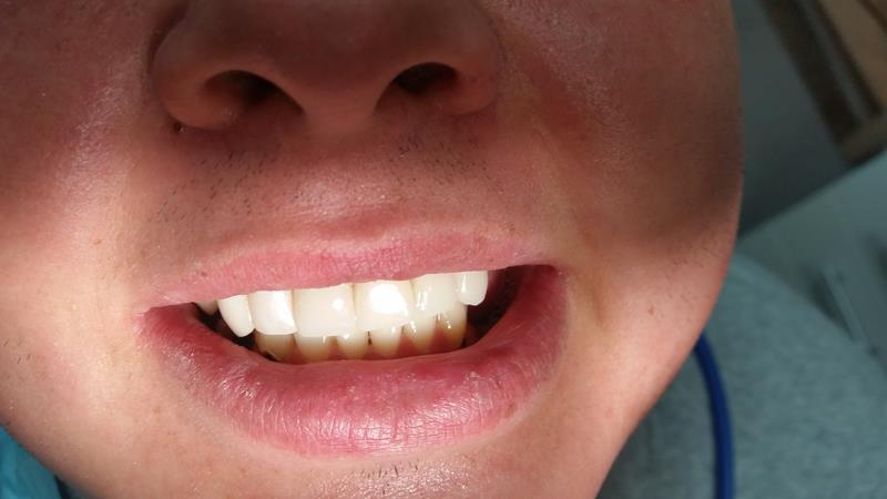 After-Licówki kompozytowe zębów górnych