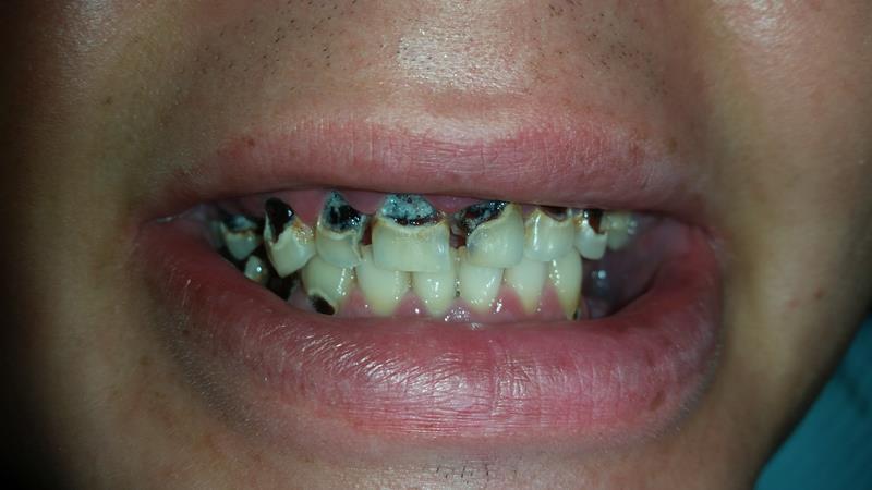 Before-Pacjent po wykonaniu licówek kompozytowych zębów górnych i odbudowie zębów dolnych