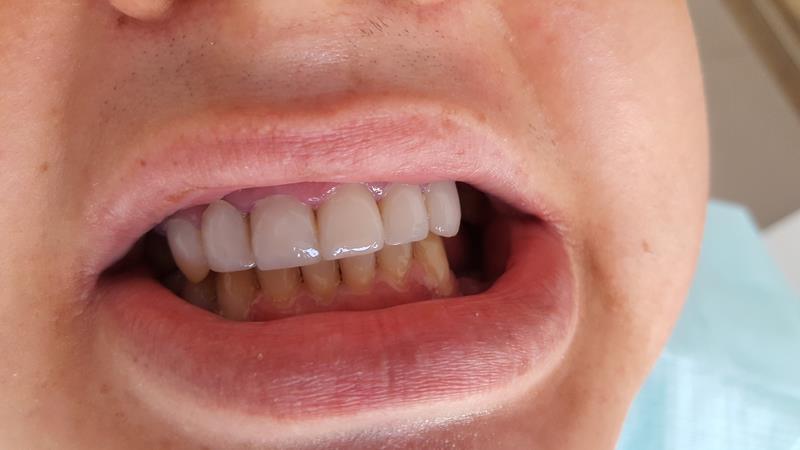 After-Pacjent po wykonaniu licówek kompozytowych zębów górnych i odbudowie zębów dolnych