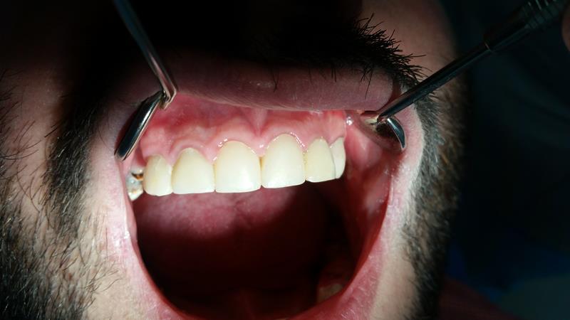 After-Pacjent w trakcie leczenia estetyczna odbudowa zębów na wkładzie z włókna szklanego